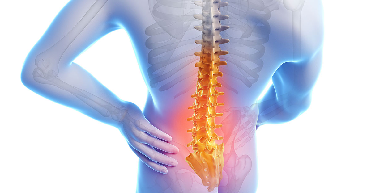 Alexandria, KY Back Pain Treatment without Surgery