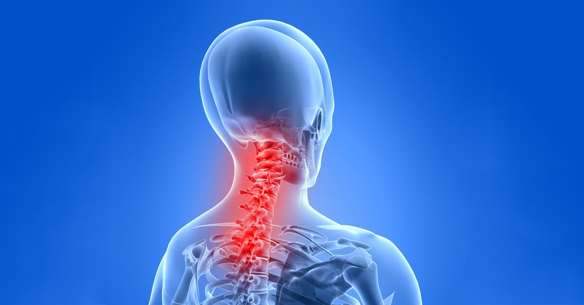 Alexandria, KY neck pain and headache treatment