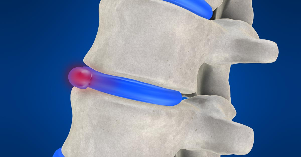Alexandria, KY non-surgical disc herniation treatment